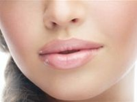 Lip contour plasty