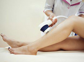 Laser epilation of the legs