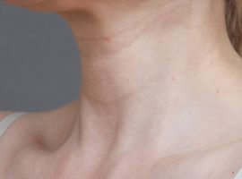 Botox neck and décolletage
